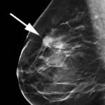 Tomosynthese (gleiche Patientin). Eindeutiger Befund eines Brustkrebses (Pfeil).